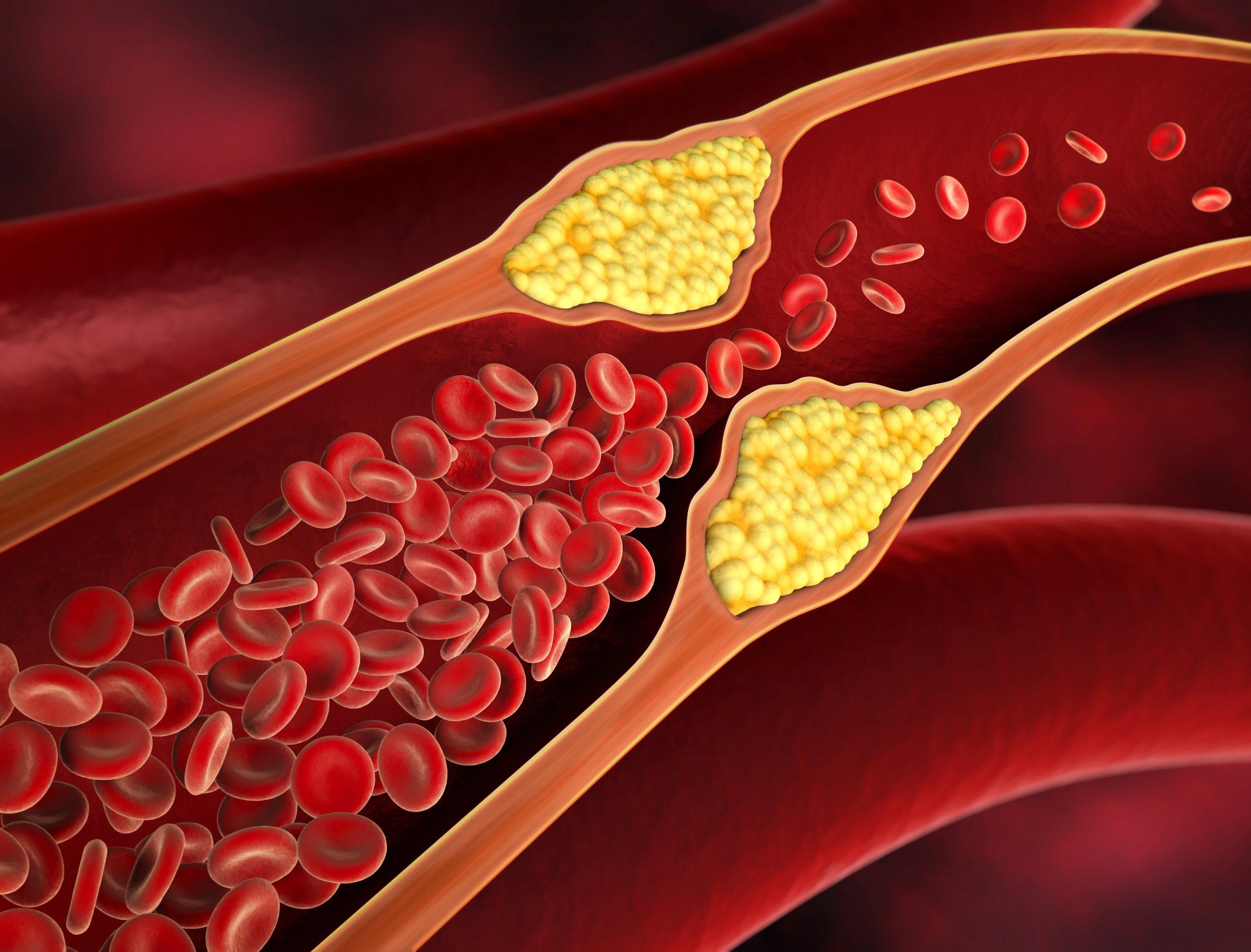 Μείωση της Χοληστερίνης με φυσικό τρόπο